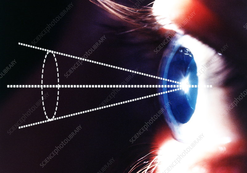 Biometric eye scan