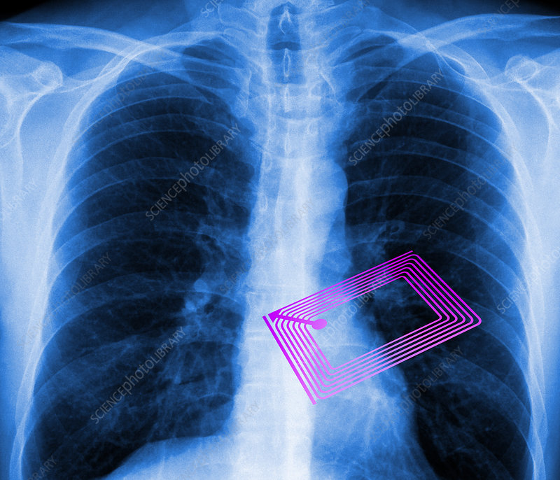 Security chip in a human chest