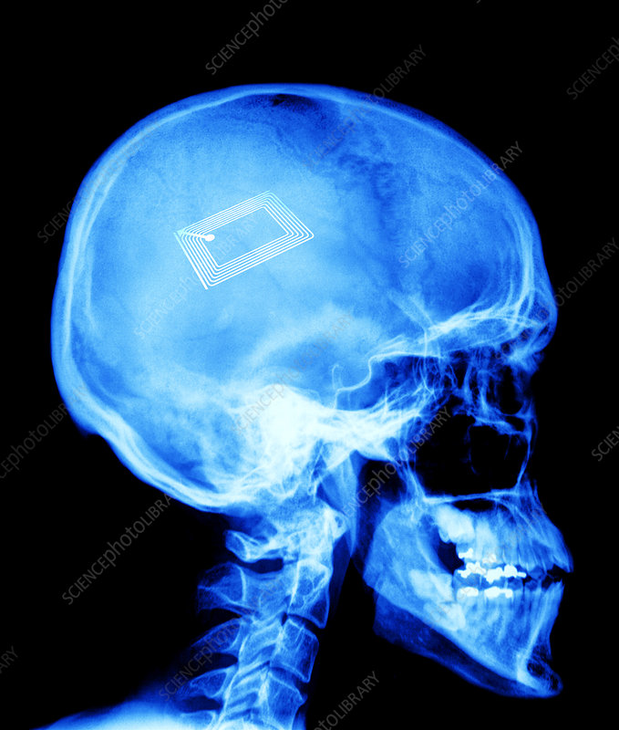 Security chip in a human skull