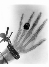 Early X-ray photograph of a hand taken in 1896