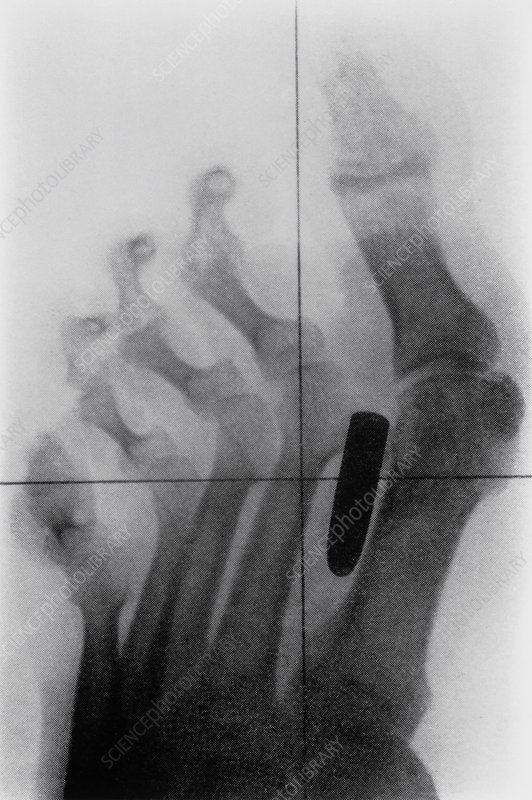 X-ray of bullet in foot of Boer War soldier, 1899