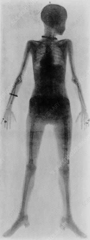 First whole body X-ray of a living person  1907X Ray Whole Body