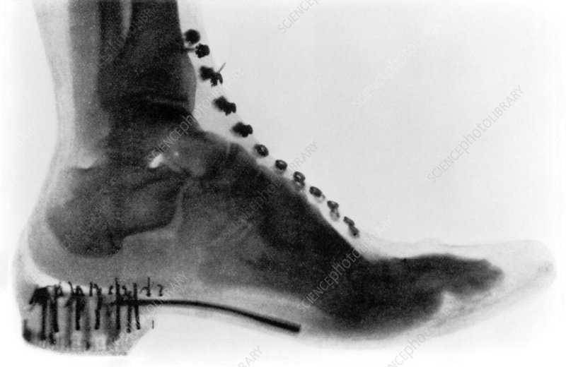 Early X-ray of a boot worn by a woman, 1896