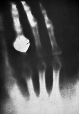 First ever human X-ray