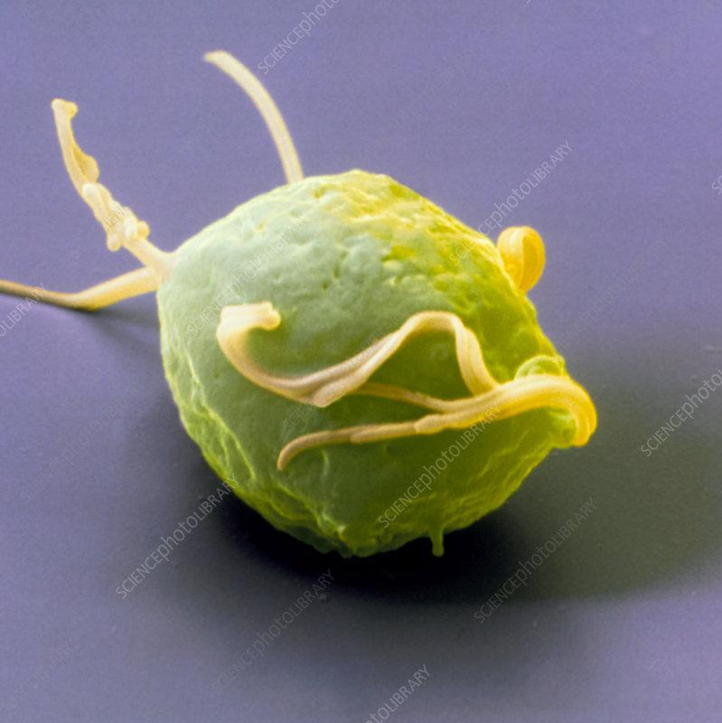 Coloured SEM of the parasite Trichomonas vaginalis