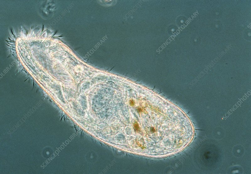 LM of the ciliate protozoan Condylostoma sp.