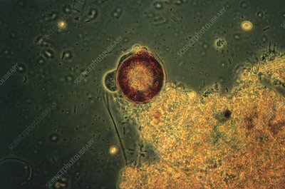LM of a shelled amoeba protozoan, Arcella sp.