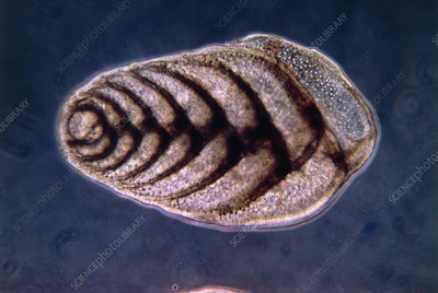 LM of Bolivinia soluta, a shelled protozoan