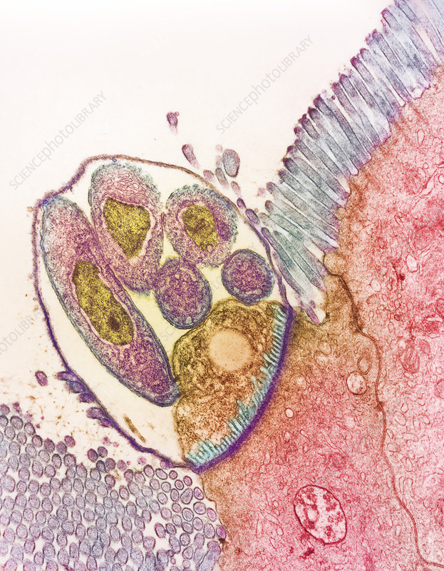 cryptosporidium parvum transmission and infection Transmission by ingestion or the genome of cryptosporidium parvum are necessary to determine the sources of specific infections cryptosporidium typically.