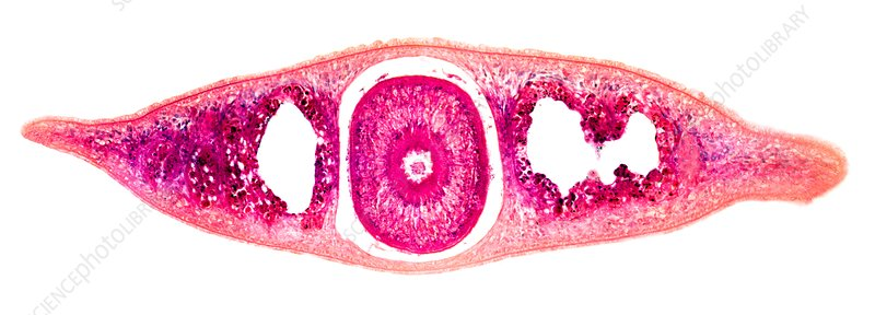 Planaria flatworm, transverse section