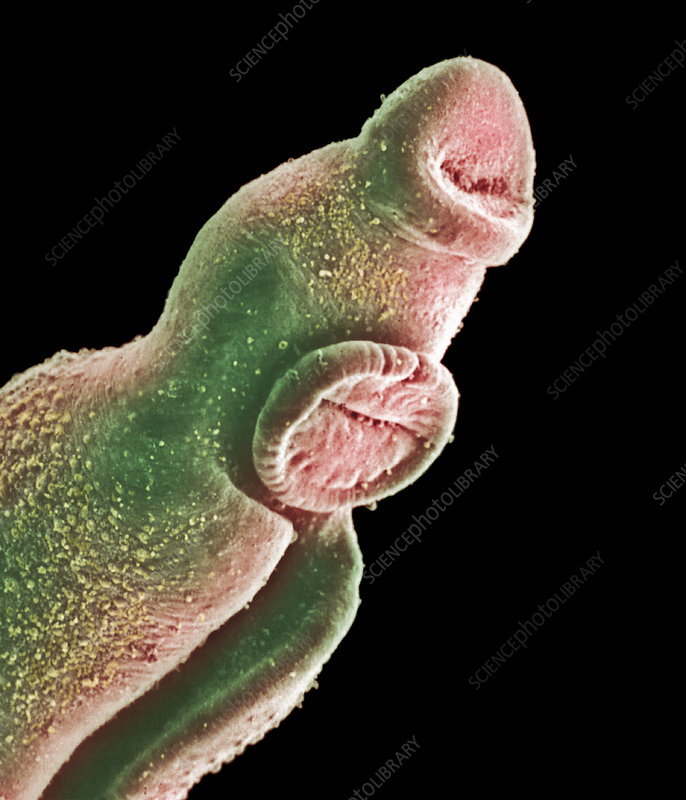 Coloured SEM of head of male schistosome parasite