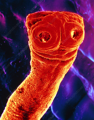 SEM of the beef tapeworm,