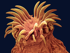 Dog tapeworm head, SEM