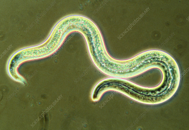 Micrograph of the first larval stage of roundworm