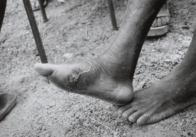 Guinea worm emerging from an infected foot