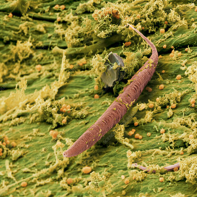 Coloured SEM of a nematode worm in a compost heap