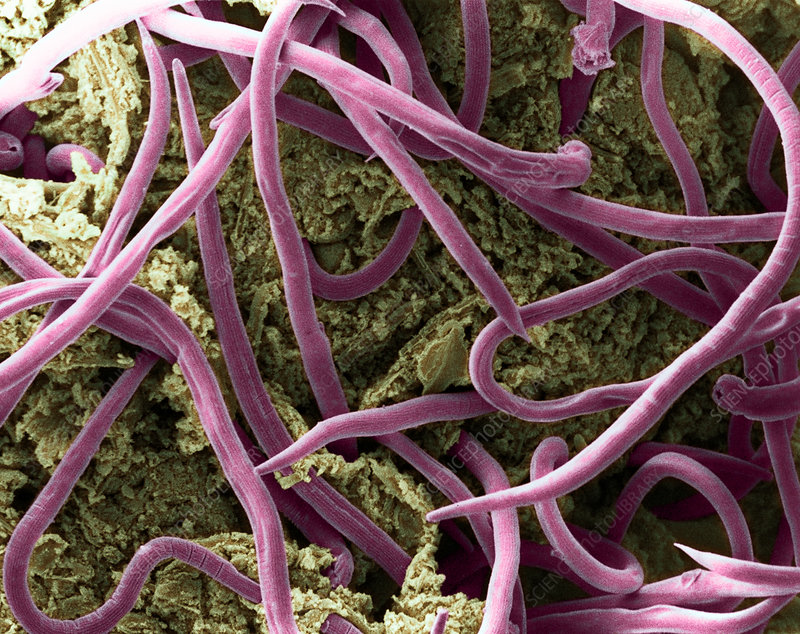 Threadworms in intestine, SEM