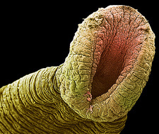 Freshwater leech's rear sucker, SEM