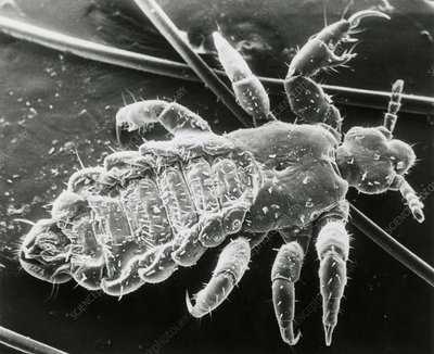 SEM of blood sucking human body/head louse