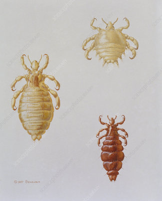 illustration showing 3 types of human louse