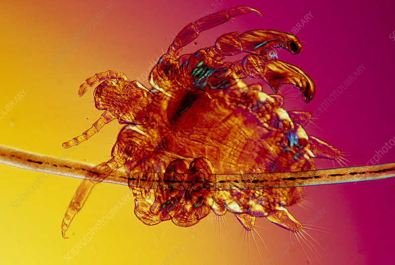 LM of crab louse attached to hair