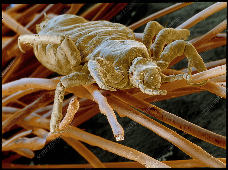 SEM of human head louse on a hair