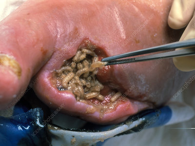 Surgeon placing maggots in a wound to clean it