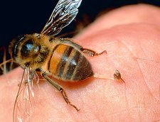 Honeybee, Apis mellifera, stinging a human finger