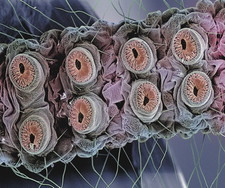 Caterpillar feet, SEM