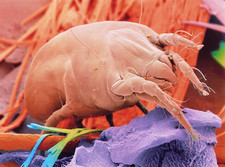 Coloured SEM of a dust mite, Dermatophagoides sp.