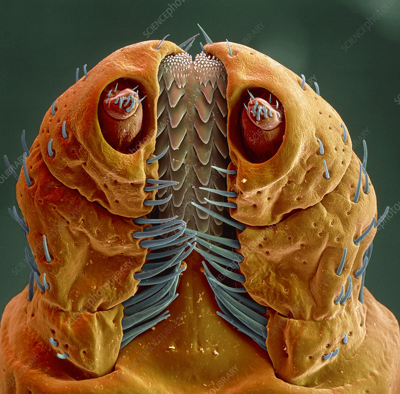 Coloured SEM Of A Rocky Mountain Wood Tick Head