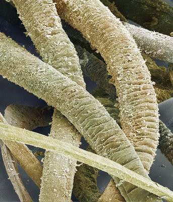 Mussel glue threads, SEM