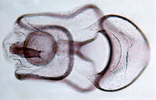 Starfish embryo
