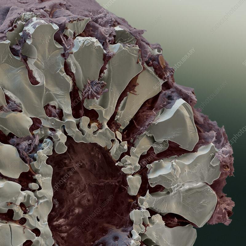Sea urchin spine, SEM