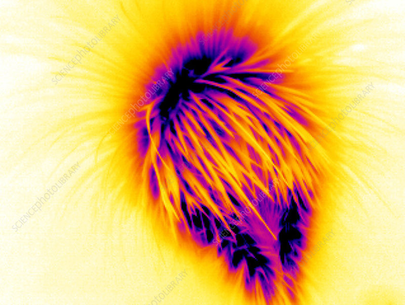 Porcupine, thermogram