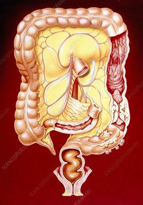 Artwork Of Crohn S Disease Colitis Colon Cancer Stock Image M130 0168 Science Photo Library