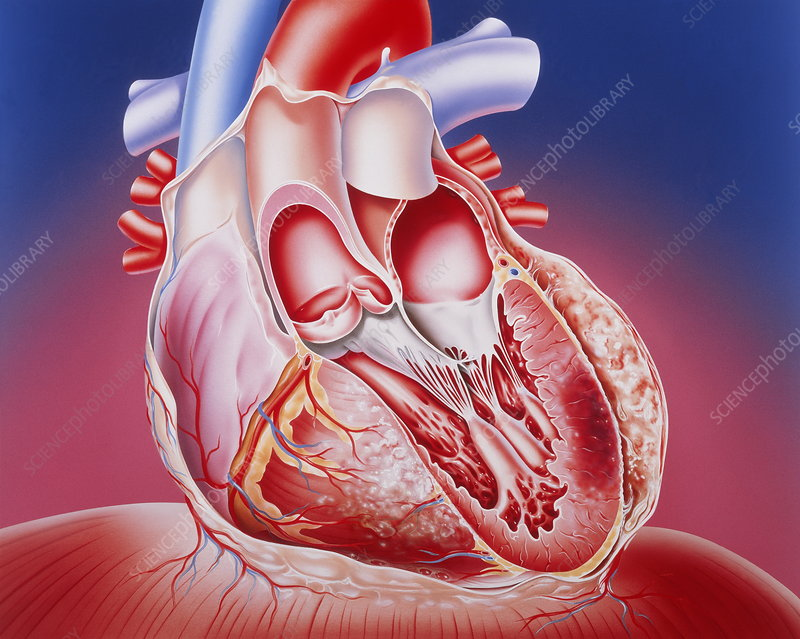 Heart after heart attack - Stock Image - M172/0206 - Science
