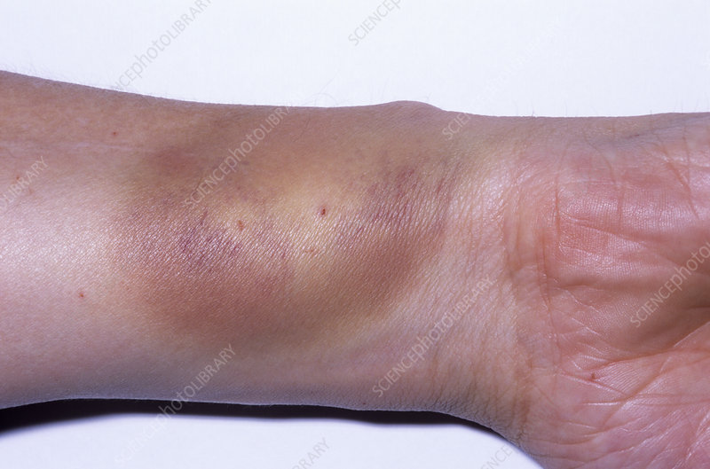 Plant injury, day 2 - Stock Image - M320/0389 - Science