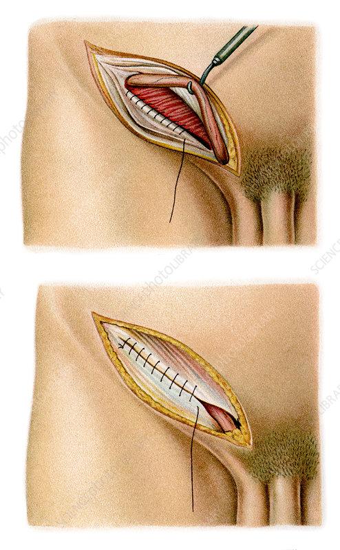 Inguinal hernia surgery, artwork - Stock Image - N700/0099